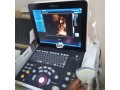 mindray-dp50-expert-ultrasound-small-1