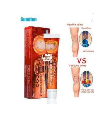 Classified Ads In Nigeria, Best Post Free Ads - varicose-veins-cream-big-0